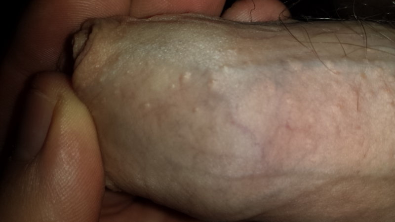 Sex with genital warts