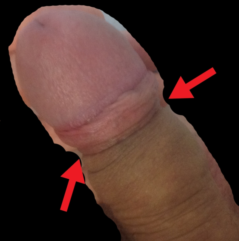 close up penis head without the frenulum
