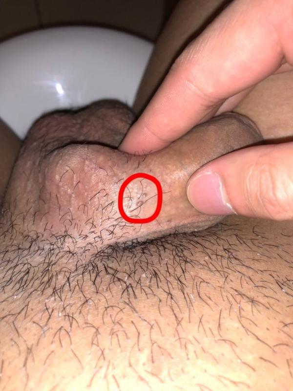 Oral Mucosal Wart