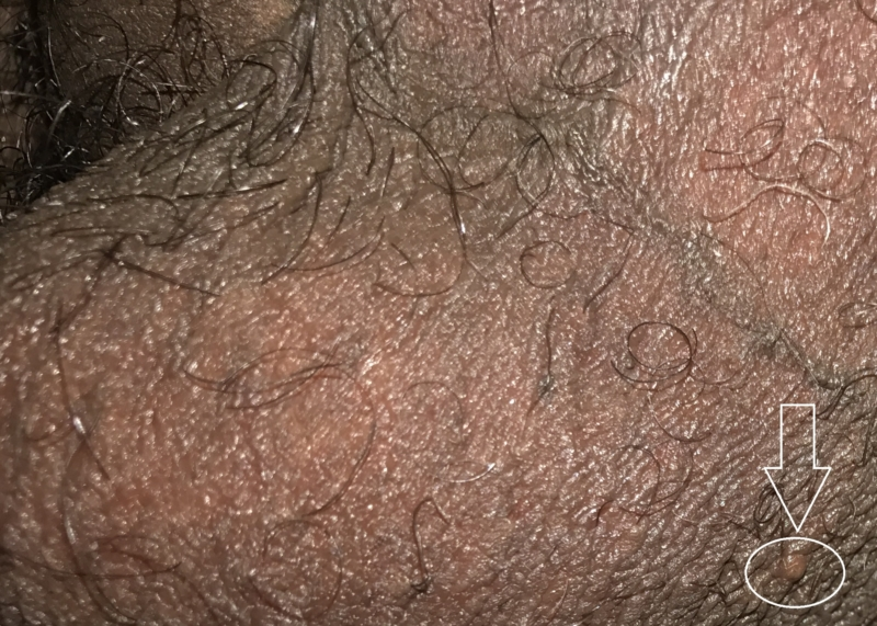 Have What does anal herpes look like