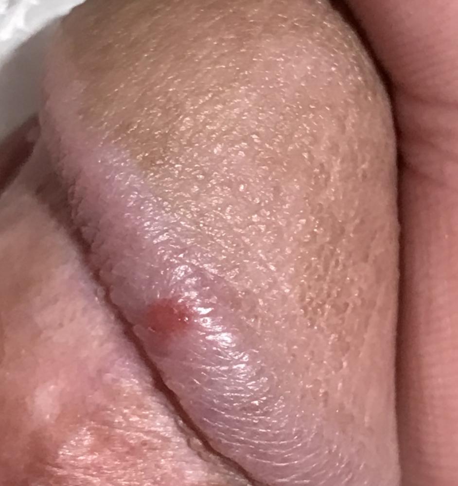 Ingrown hair on penis