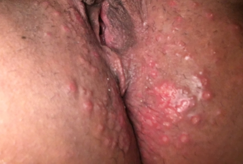 genital-herpes-on-the-anus-pics-stepmom-helps-out-porn-video