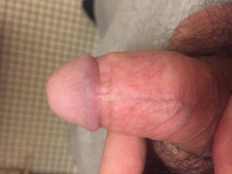 Red spots on penis no itching