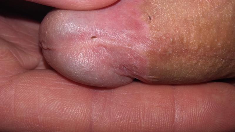 Breve short frenulum Short Penile