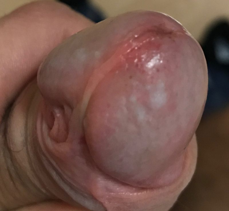 White Spots On Tip Of Penis 42