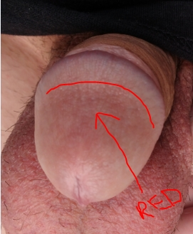 Consider, that red irritated skin penis causes