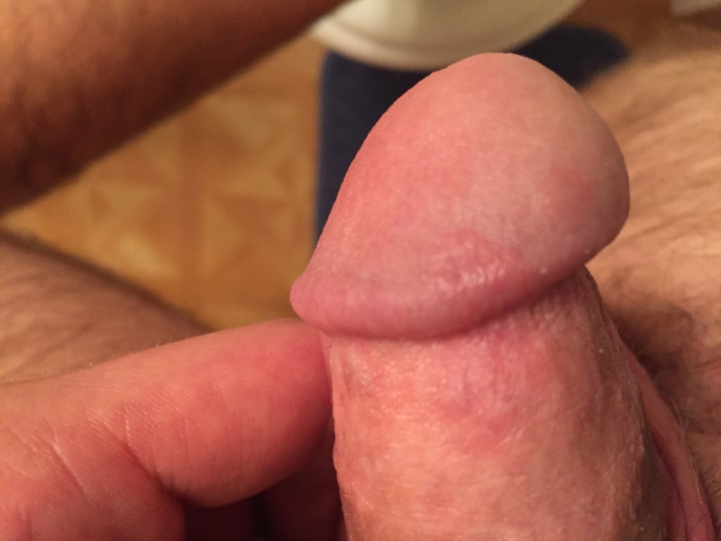 Redness on penis after sex