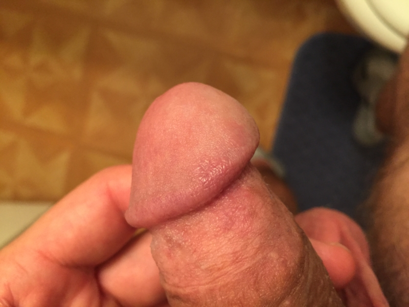 Itching on penis head