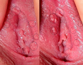 photos vaginal papillomatosis