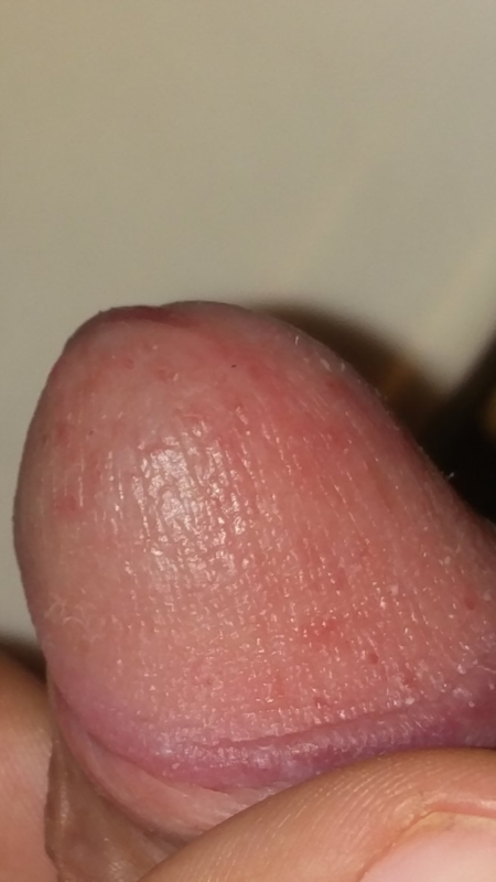 Oral sex genital herpes — photo 14