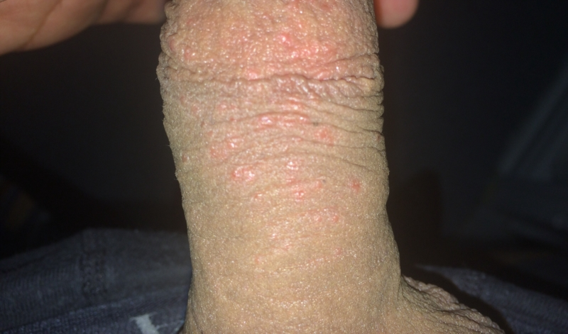 Dots red penis small my have on Pimple
