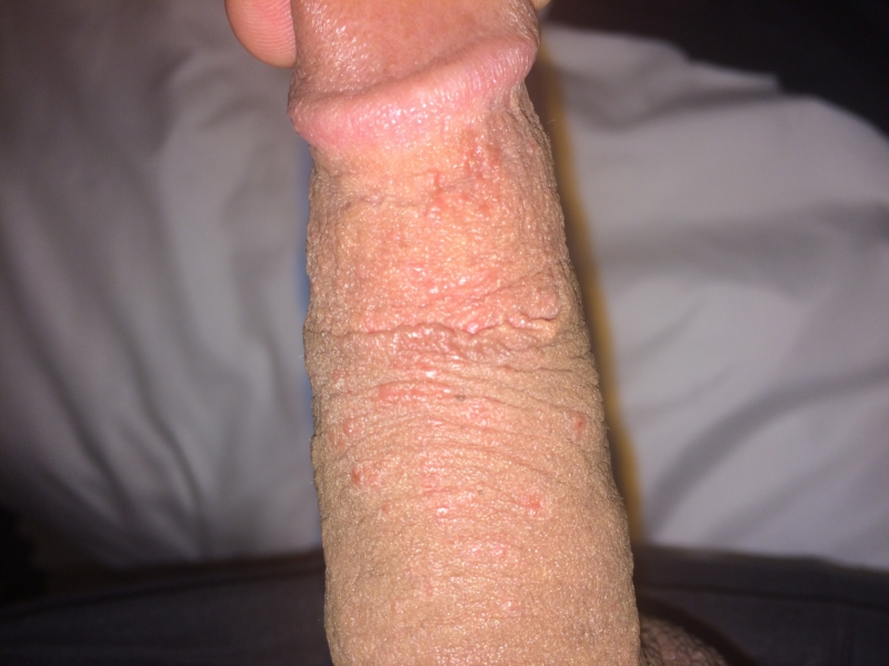 Small Red Dots On Tip Of Penis