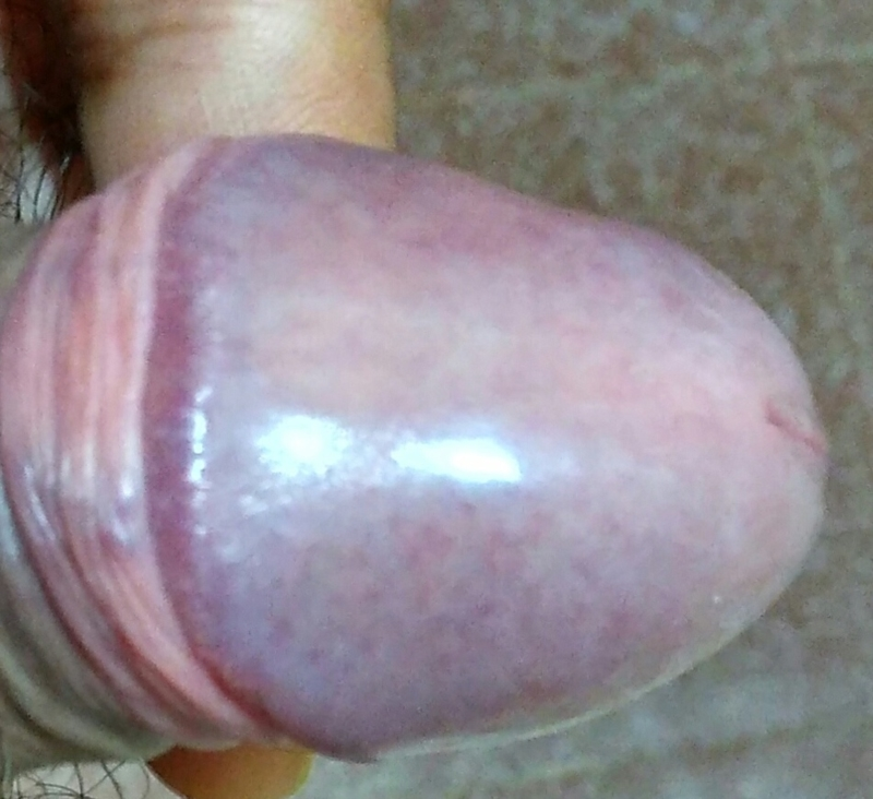 Sore Tip Of Penis
