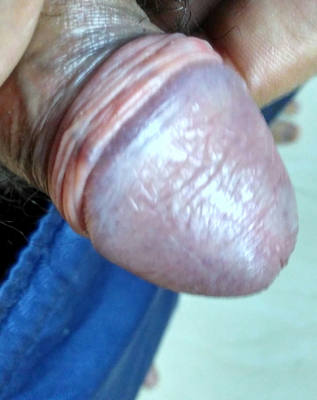 Shiny spots on penis 1