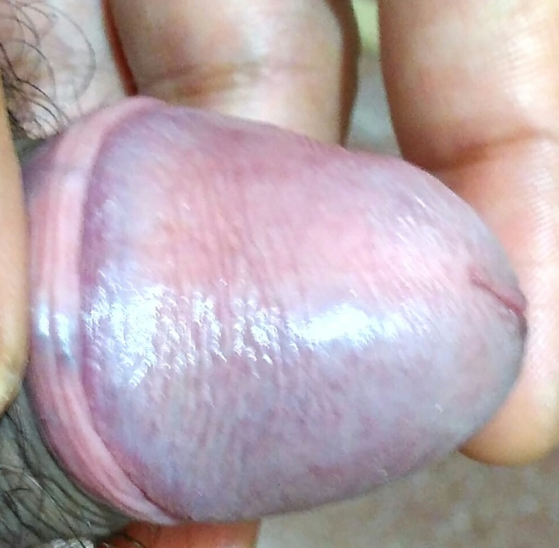red rash on glans and foreskin