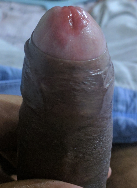 Redness around penis head