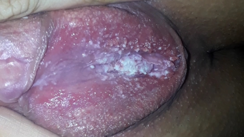 Vaginal dryness red itch