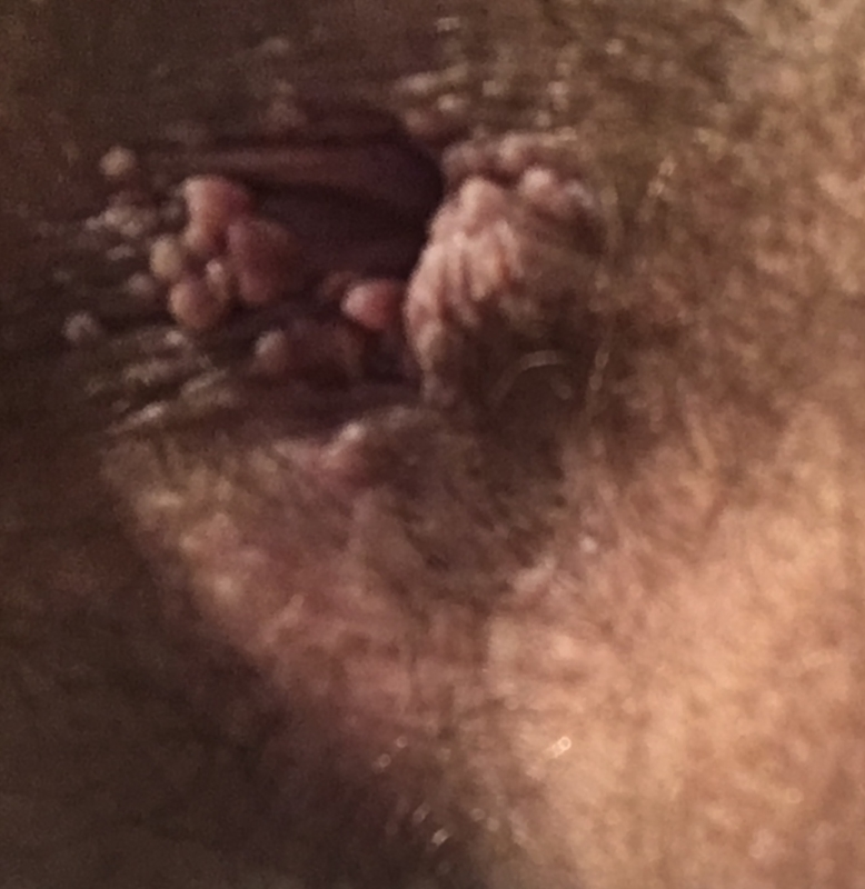 Small white spots on anus