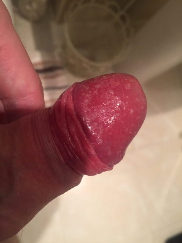 Red rash on head of penis, southindian aunties nude pics