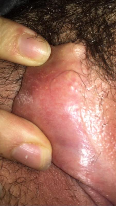 Swollen vagina or vulva