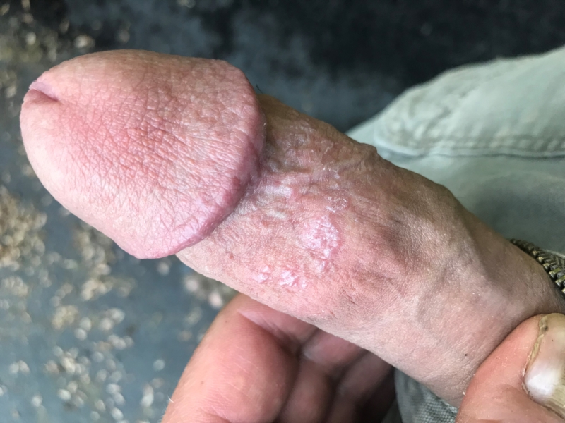 dry Tip of penis