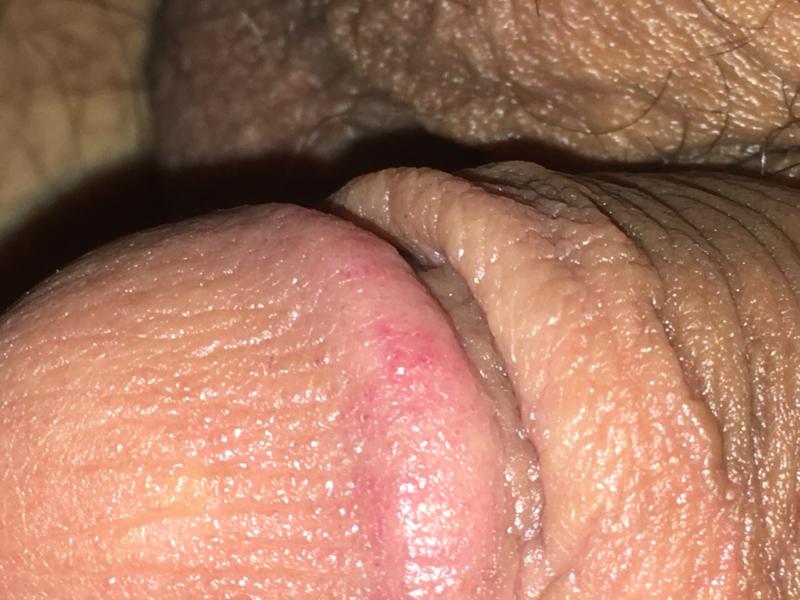 Honeycomb herpes forum
