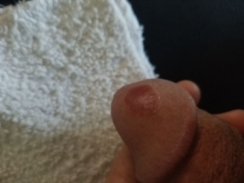 Well! Red spots on penis head opinion