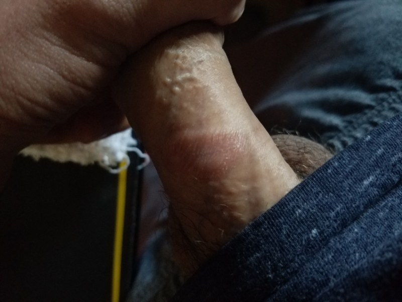 Red spots on dick possible and