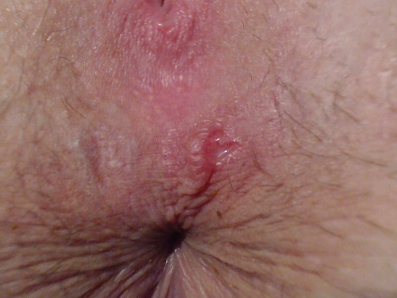 And anus sores