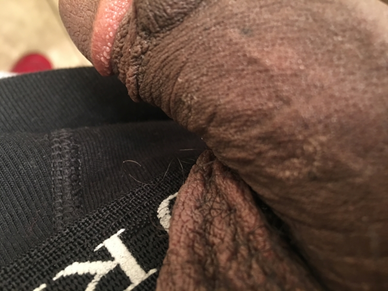 Patch of dry skin on penis