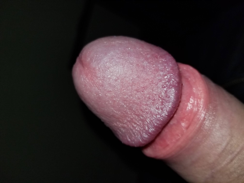 Common skin disorders of the penis