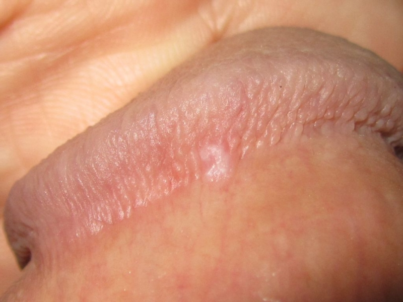 bumps near head of penis