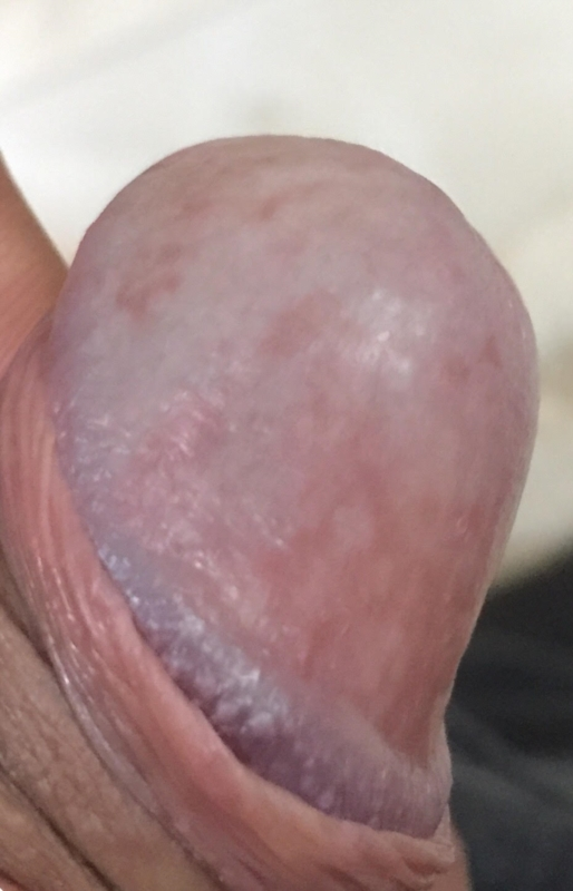 Red Patches On Penis Head Non Itchy Non Smelly And No Pain Penis