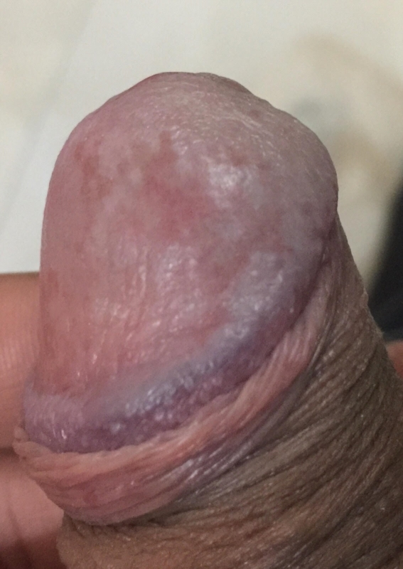 Can Redness around penis head remarkable