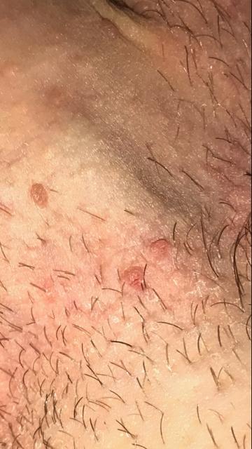 Genital Warts At Base Of Penis