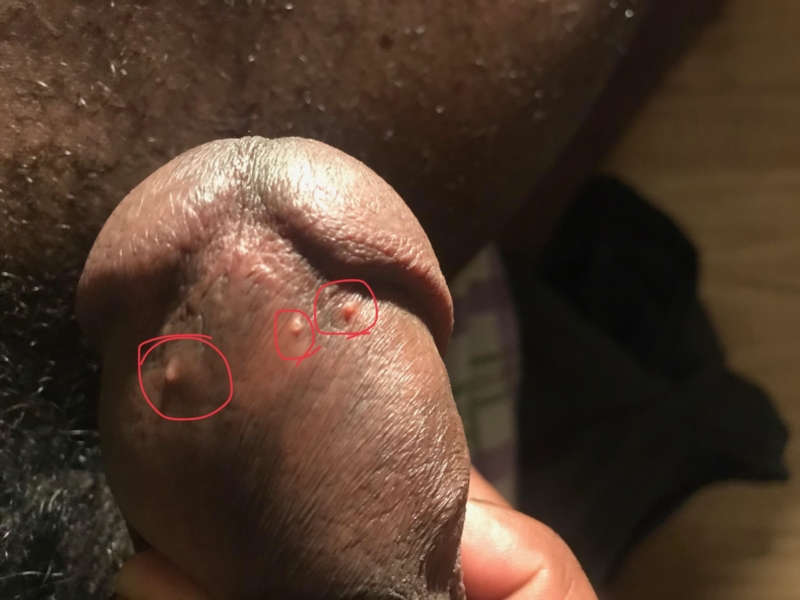 What are the reasons for having pimples on the penis