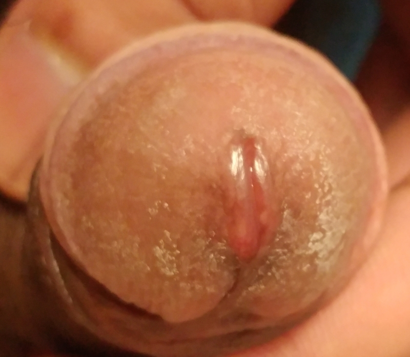 Bleeding after sex and masturbation