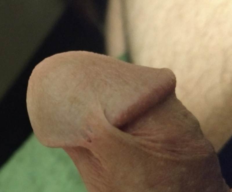 on penis head Foreskin attached to