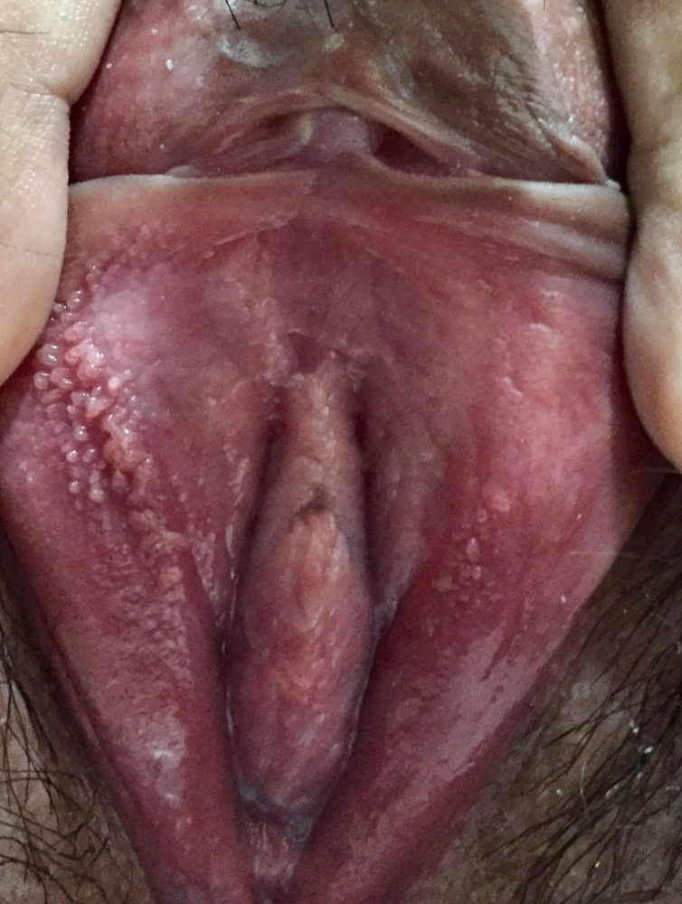 red-spot-on-vagina-amateur-home-porn-tube