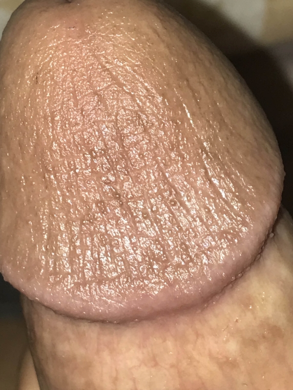 Are these bumps an STD or PPP? (photos)