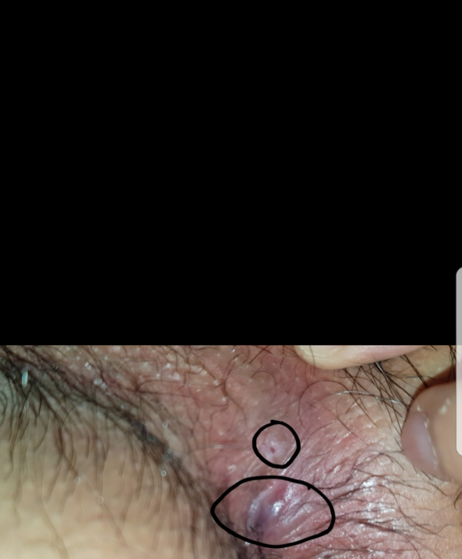 What does anal herpes look like apologise