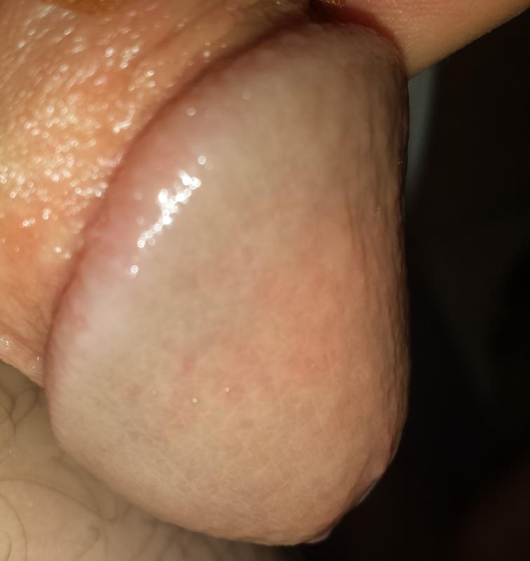 The vagina and the vulva