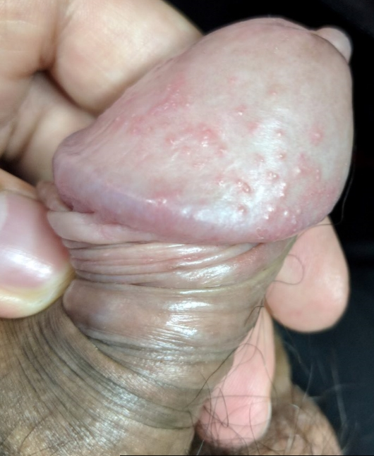Red dots on the head of the penis