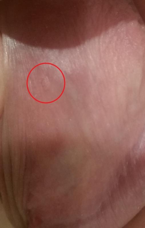 Genital warts on penis