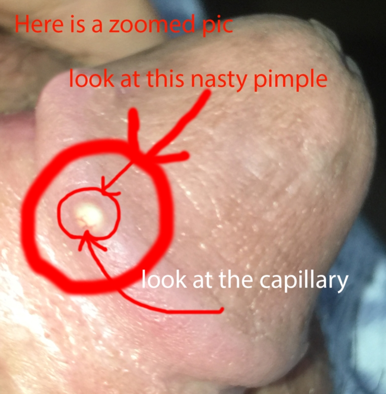 please answer ASAP guyyyys. i really need your help.That disgusting little  veinnnn. I think it is called a Capillary. I want this pimple to just be  removed.