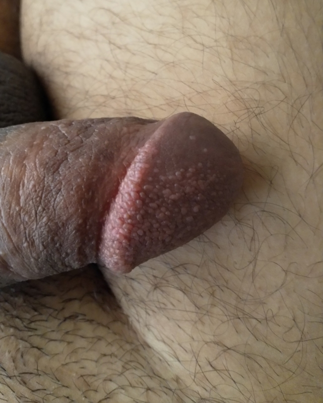 Small white bump on penis