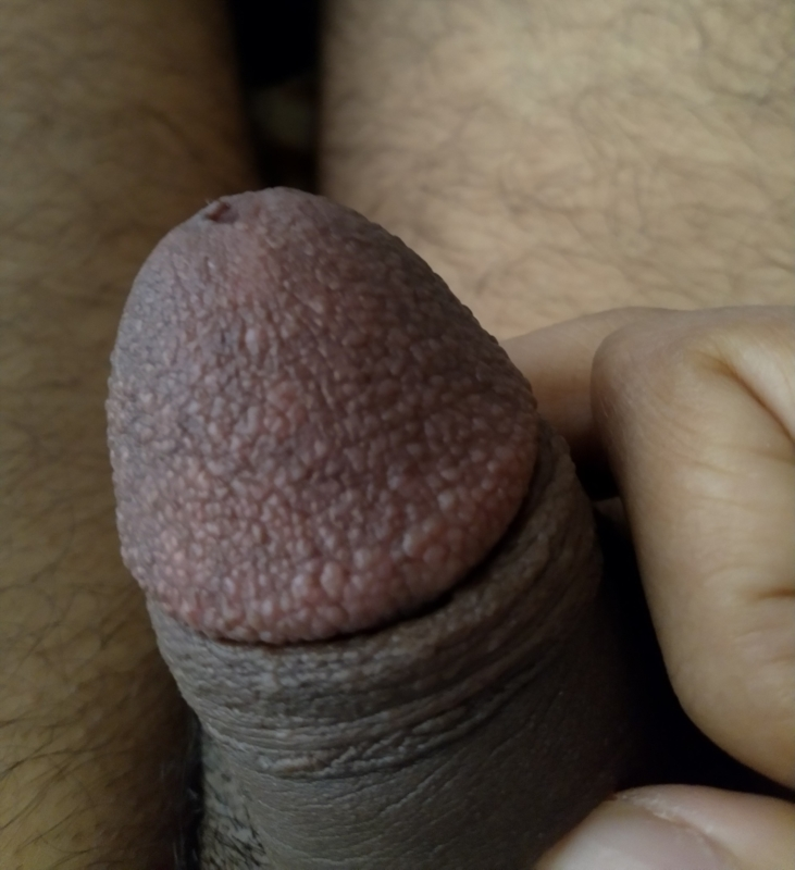 Why Do I Have Bumps On My Penis