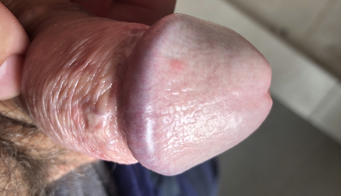 What could cause my penis to be red itchy