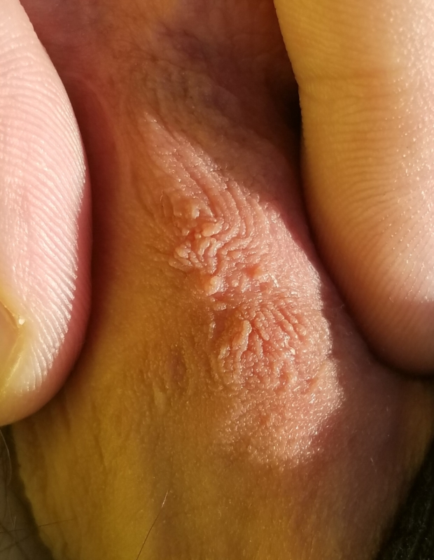 Hpv wart texture. Ovarian cancer fluid in lungs