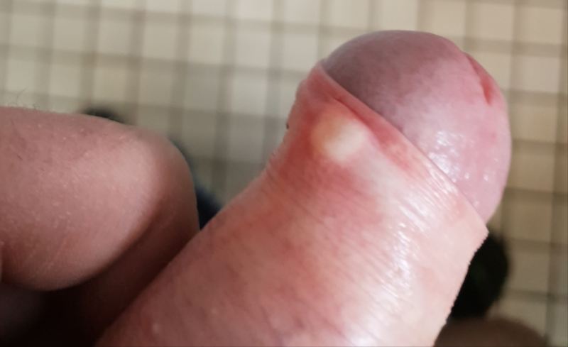 How to get rid of penile acne